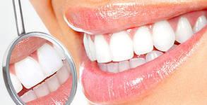 Фотополимерна пломба или преглед, почистване на зъбен камък с ултразвук и полиране на зъби