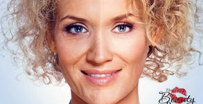 Безиглена мезотерапия и RF на лице и околоочен контур - 1 или 2 процедури