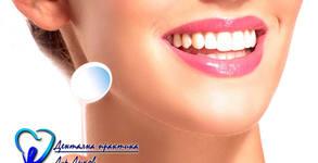 Почистване на зъбен камък с ултразвук и полиране с четка и паста, плюс преглед