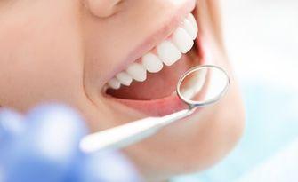 Обстоен преглед, почистване на зъбен камък, отстраняване на плака, оцветявания и налепи с ултразвук, и полиране на зъбите, от ВиР Дентал