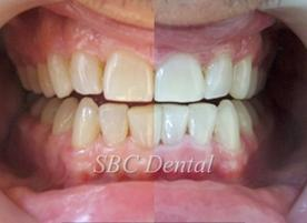 Стоматологичен център SBC Dental