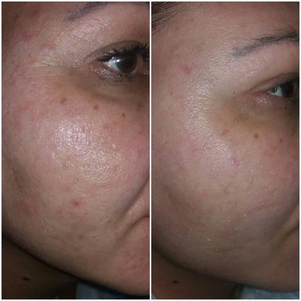 потничка на лице или аллергия
