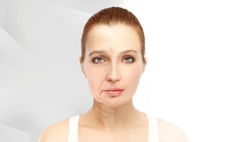 Подмладяване с RF лифтинг на лице и двойна брадичка, плюс терапия с LED светлина на околоочен контур