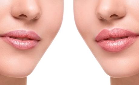 Поставяне на дермален филър Hyaluronika с хиалуронова киселина - на устни или назолабиални гънки