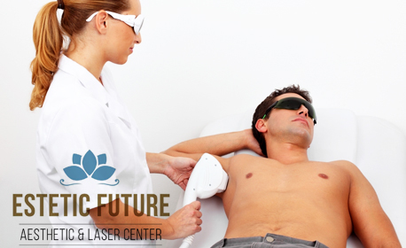 Лазерна епилация за мъже с диоден лазер Venus Velocity™ - на зона по избор