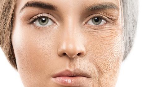 Грижа за лице - почистване и биолифтинг, RF лифтинг или HIFU SMAS лифтинг