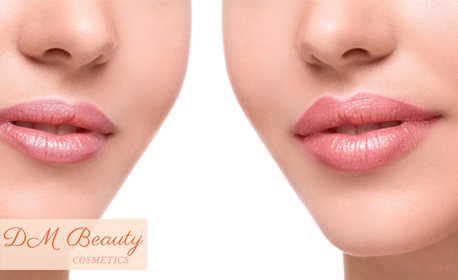 Безиглено ултразвуково влагане на хиалуронов филър - за уголемяване на устни или за запълване на бръчки на зона по избор