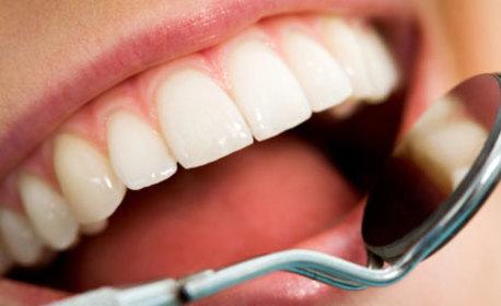 Почистване на зъбен камък с ултразвук и полиране с Air Flow или паста