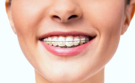 Преглед и консултация от специалист ортодонт, плюс план за лечение и полиране