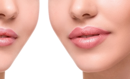 Уголемяване на устни с дермален филър Revolax deep