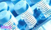 Изследване на чернодробната функция, плюс изследване за хепатит В и С