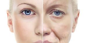 Безиглена мезотерапия на лице, шия и деколте с моментален ефект - трифазен пилинг, въвеждане на серум и подмладяващ масаж