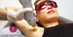 Лазерна епилация за жени на зона по избор