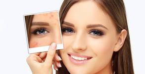 Терапия и масаж на лице - за мазна кожа, предразположена към акне