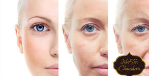 Ултразвуков пилинг за лице, лимфодренажен масаж и въвеждане на активен серум - без или със екстракция или кислороден душ