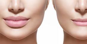 Уголемяване на устни чрез безиглено ултразвуково влагане на хиалуронова киселина