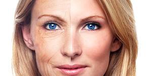 Радиочестотен лифтинг - на лице или на лице и шия