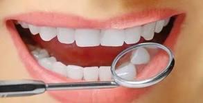 Почистване на зъбен камък и полиране на зъби, плюс профилактичен преглед