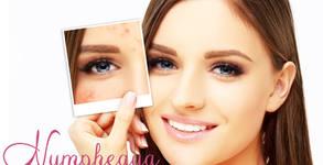 Терапия за лице с лазер SHR E-Light - срещу акне, пигментации или разширени капиляри