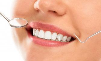 Почистване на зъбен камък с ултразвук, полиране, премахване на налепи и оцветявания, плюс обстоен преглед, от Кабинет Florident
