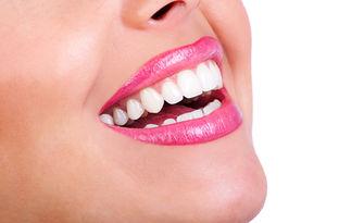 Почистване на зъбен камък с ултразвук и полиране на зъби, плюс преглед, от Д-р Драгомир Георев