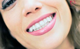Подредете зъбите си! Ортодонтски преглед, консултация и план за лечение, с бонус 50% отстъпка за брекети на горна или долна челюст