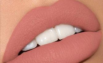 Безиглено уголемяване на устни с хиалуронов филър Hialuron Revolax Deep и Injector Pen, от Beauty Fantasy