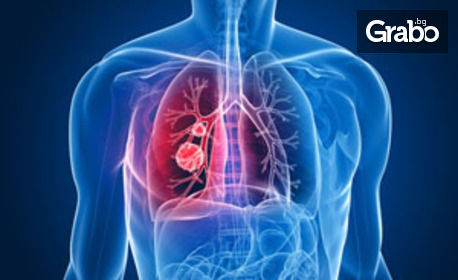 Изследване с биоскенер на здравословното състояние на организма - без или със анализ на резултатите и препоръки