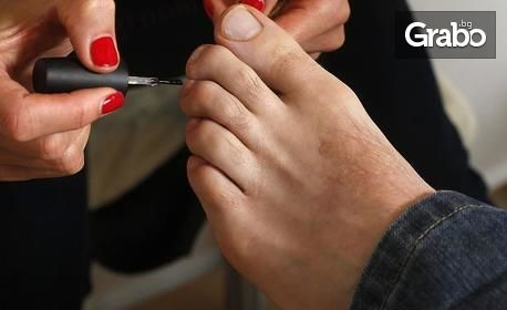 Лечение на гъбички по ноктите и кожата на краката или ръцете с лазер