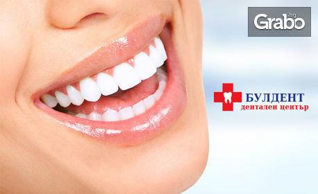 Почистване на зъбен камък с ултразвук, полиране с Airflow, обстоен преглед и план за лечение