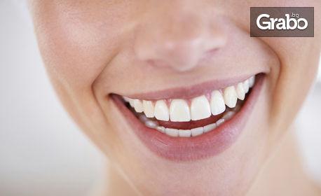 Почистване на зъбен камък и полиране, плюс обстоен дентален преглед с интраорална камера
