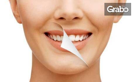 Здрави зъбки! Преглед, план за лечение и почистване на зъбен камък, поставяне на пломба, или избелваща процедура