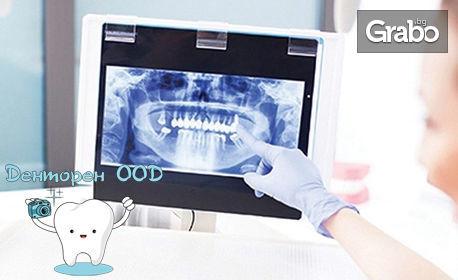 Панорамна дентална снимка или компютърна томография на част или цяла челюст