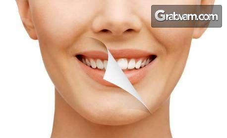 Преглед, план за лечение и почистване на зъбен камък - без или със полиране или избелване, или фотополимерна пломба