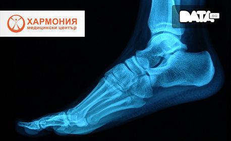 Измерване на костната плътност с ултразвуков денситометър Sonost 3000
