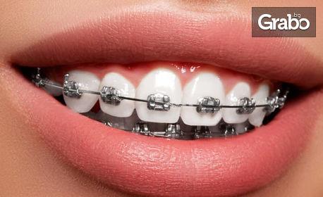Преглед и консултация от специалист ортодонт, плюс план за лечение и