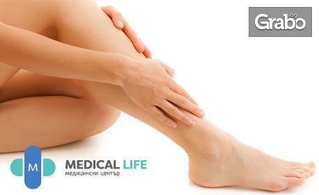 1 процедура с Cellu M6 Medical - при разширени вени, отоци и уморени крака