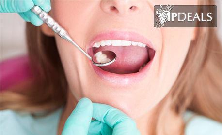 Почистване на зъбен камък с ултразвук или фотополимерна пломба, плюс обстоен преглед и план за лечение