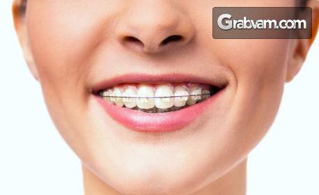 Преглед и консултация от специалист ортодонт, плюс изготвяне на план за лечение и полиране