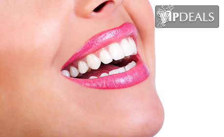 Почистване на зъбен камък и полиране, плюс обстоен преглед и обучение за правилна орална хигиена