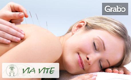 Китайски масаж или акупунктура за 12.50лв