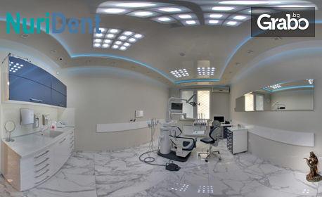 Поставяне на зъбен имплант, плюс надстройка, преглед и вземане на отпечатък