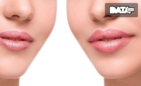 Безиглено влагане на хиалуронова киселина - за уголемяване на устни или запълване на бръчки
