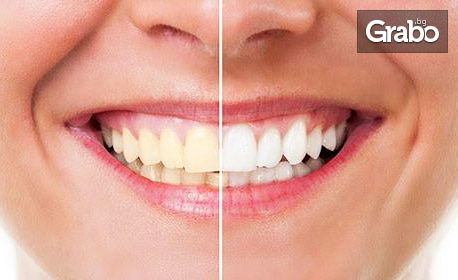 Почистване на зъбен камък с ултразвук и полиране с Air Flow, плюс избелване и нанасяне на гел за защита